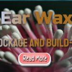 Ear Wax Removal North London